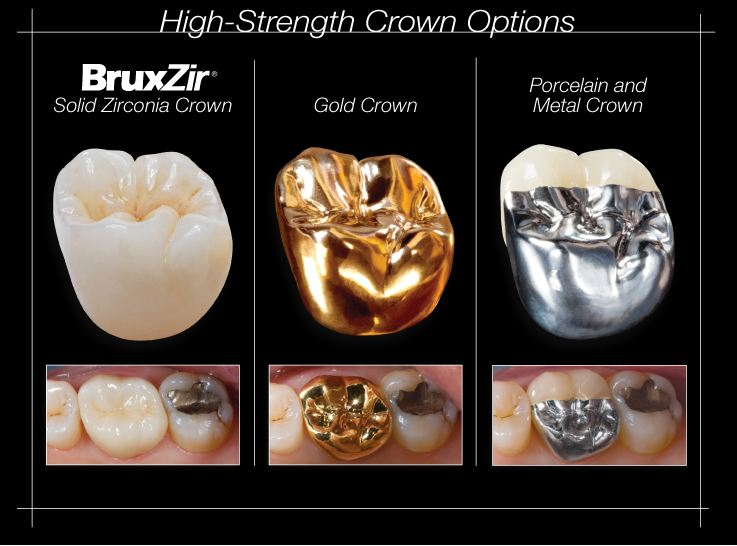1st Qtr 2012 Newsletter - High strength crown options
